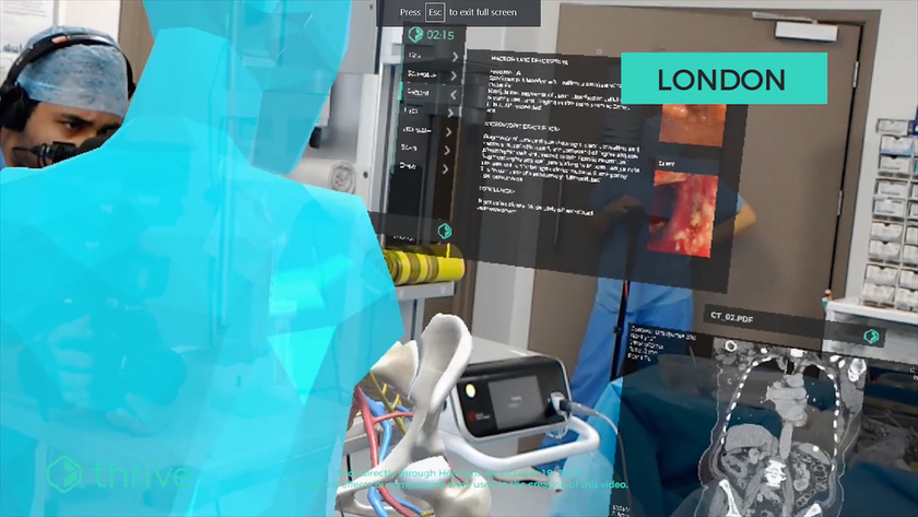 Thrive AR-application for Hololens glasses was developed by Aetho company